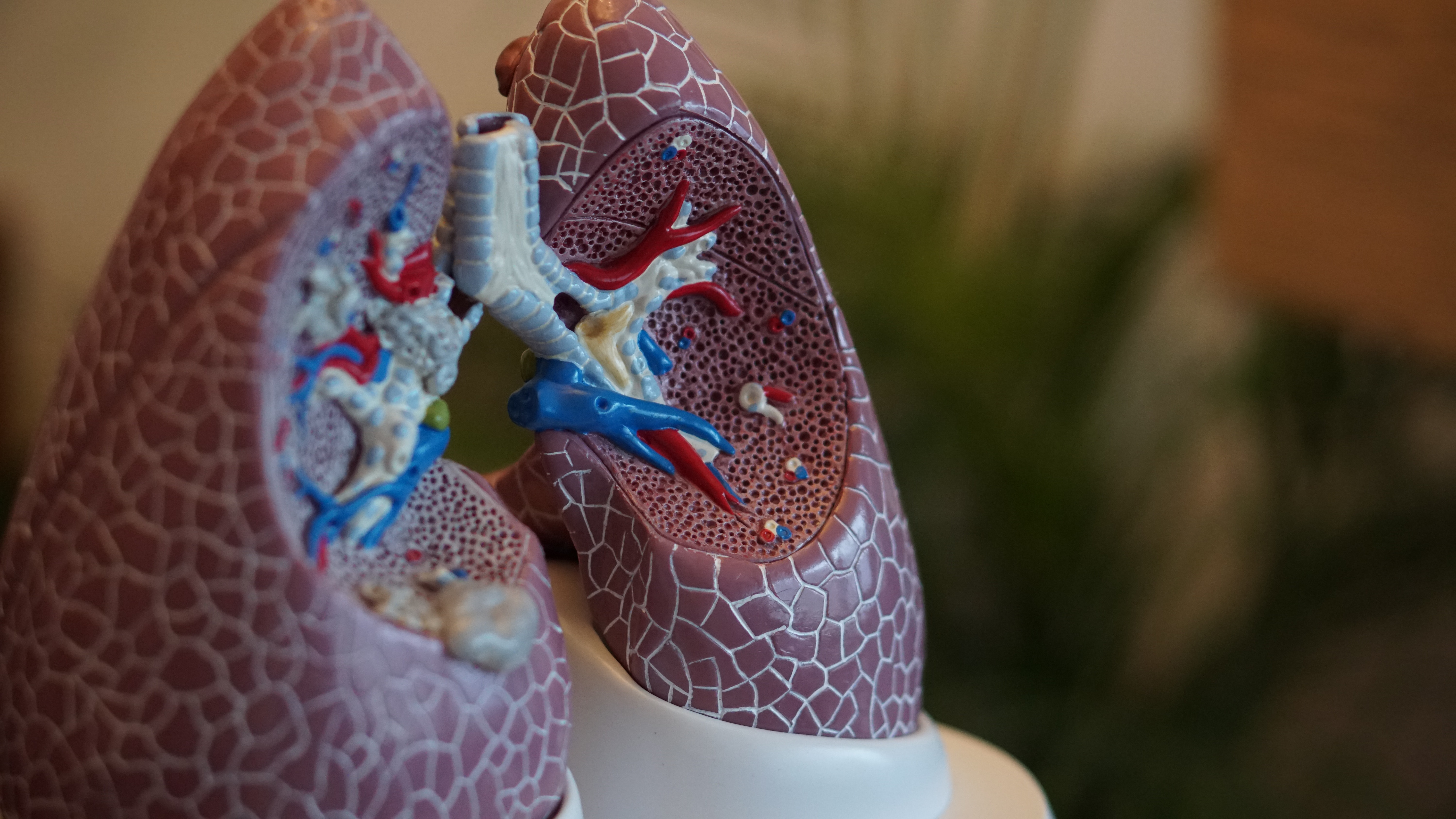 Economic and Health; the double burden of Tuberculosis in Indonesia.